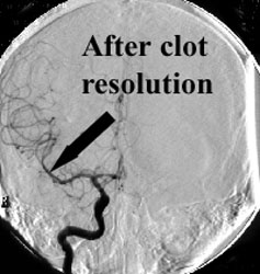 After clot resolution