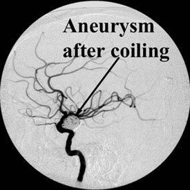 Aneurysm after Coiling