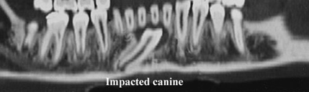 Impacted Canine