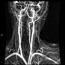 Mr angiografie