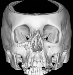 3D Reconstruction of the Skull showing Bone Density