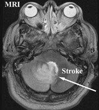 t2 MR of Stroke