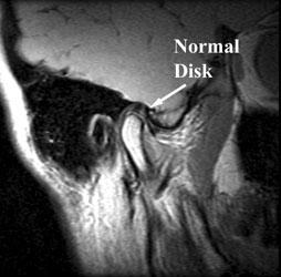 Tmj Imaging Imaging Glossary Patients Ur Medicine Imaging