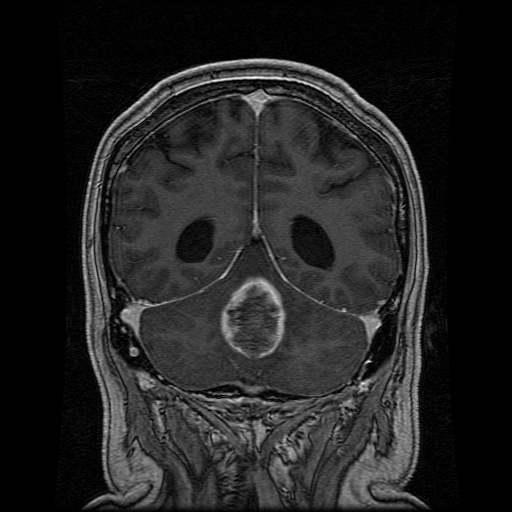 ependymoma - conditions - neurooncology - specialties