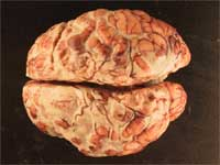 Figure 1: Gross examination reveals a purulent exudate over surface of brain