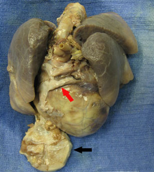 Photo of heart and lungs after autopsy