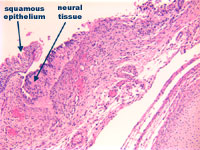 Figure 4: Incomplete formation of vertebral body with primitive neural tissue in continuity with squamous epithelium at higher power