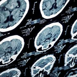 photo of multiple MRI scans