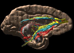 Human Brain Showing Sites Active in Reward and Decision Making