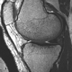 MR Imaging of Musculoskeletal Joints and Bone Properties