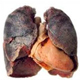 Lung Disease: COPD, Lung Scarring, and Infection