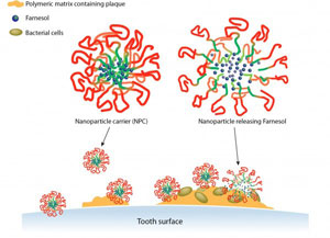image of plaque killing nanoparticles