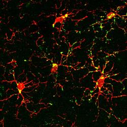 Image from study shows protein marker (green) that indicates activation of microglia (red) after exp